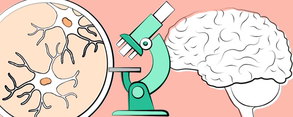 En menneskelig hjerne, et mikroskop og en closeup af menneskelige nerveceller.