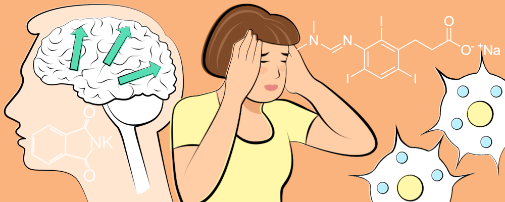A woman with migraine with her head in her hands, and a human brain with green arrows showing the progress of a migraine attack.